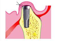 Implantation3
