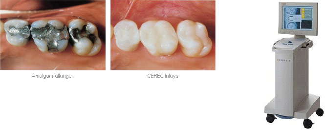 cerec-inlays